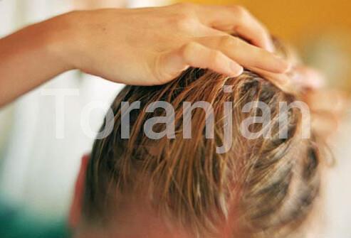 موی چرب - ترنجان