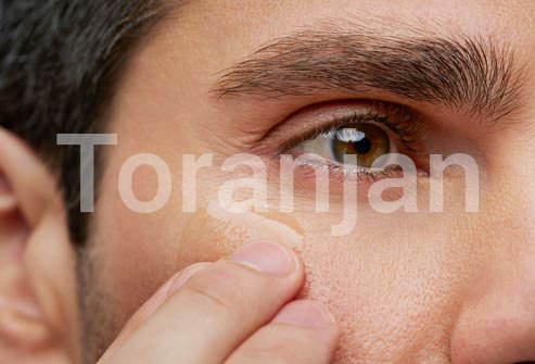 چروکهای کنار چشم را رام کنید - ترنجان