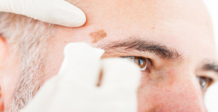 لکههای کبدی - چگونگی ایجاد، تشخیص و درمان لکههای کبدی - ترنجان