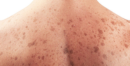 عامل سرطان پوست چیست؟ - ترنجان