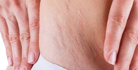 پوست و ترکهای پوستی (ترکهای بارداری) - ترنجان