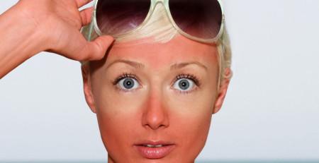 آفتابسوختگی و واکنشهای دیگر پوست نسبت به نور خورشید - ترنجان