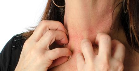 انواع و محرکهای آلرژی پوستی - ترنجان