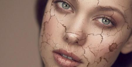 مبارزه با پوست خشک