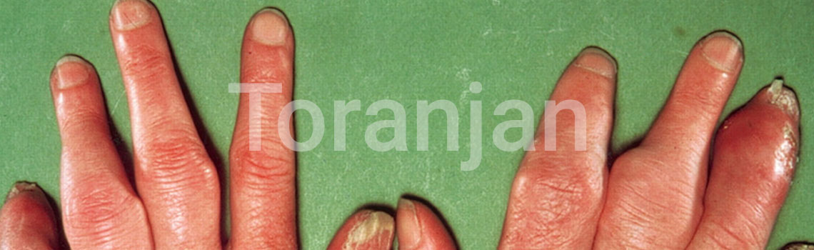 آرتریت پسوریاتیک - ترنجان