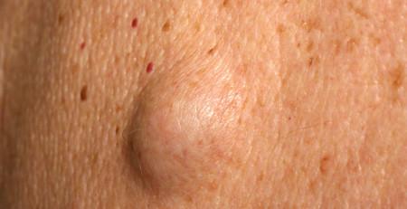 بیماری لیپوما چه علائمی دارد و نحوهی درمان آن چگونه است؟ - ترنجان