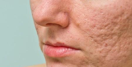 آشنایی با راههای درمان اثرات آکنه که بر روی پوست باقی میماند - ترنجان