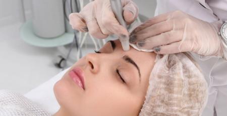 الکترولیز برای از بین بردن موها - ترنجان