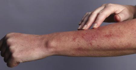 اسلایدهایی درباره عوارض پوستی شایع در بین بزرگسالان - ترنجان