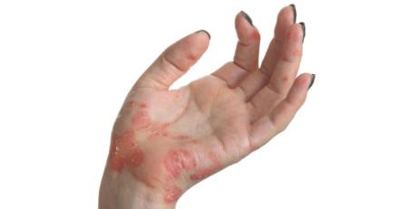7 نوع پسوریازیس - ترنجان