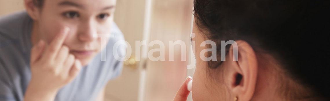 آکنه دوران نوجوانی: داروهای موضعی - ترنجان