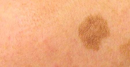 معرفی 5 درمان طبیعی مفید برای کبد واز بین بردن لکههای کبدی - ترنجان