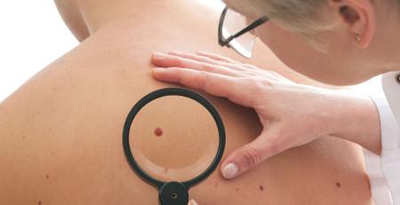 کیستها و تومورهای پوستی - ترنجان