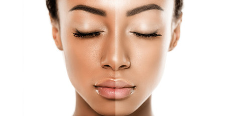 15 درمان خانگی برای روشن یا سفید کردن پوست - بخش دوم - ترنجان