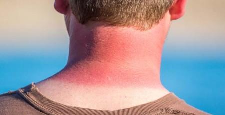 آسیبدیدگی پوست در اثر نور خورشید - روشهای تشخیص پوست آسیبدیده - ترنجان
