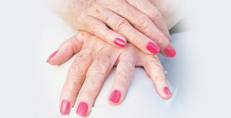 معرفی 6 راه مؤثر برای از بین بردن و پیشگیری از ایجاد لکهی کبدی - ترنجان