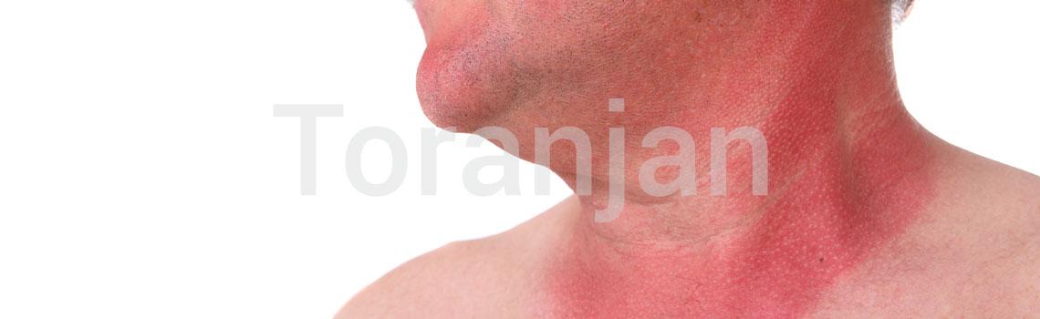 عوارض پوستی شایع در فصل تابستان - آفتابسوختگیها - ترنجان