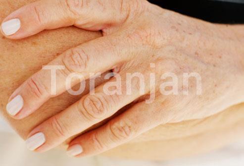 لکههای پیری یا کبدی - ترنجان