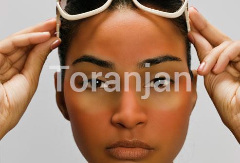 آفتاب نگیرید و پوستتان را برنزه نکنید - ترنجان