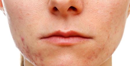 بیماریها و عارضههای پوستی که ظاهر بسیار بدی دارند - بخش اول