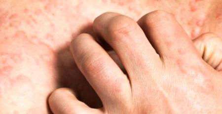 اختلالات پوستی شایع - بخش اول - ترنجان