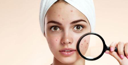 پرسش و پاسخ درباره روشهای مراقبت از پوست صورت در نوجوانان - ترنجان