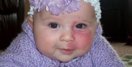 خالهای مادرزادی قرمز، همانژیومها و پوست - ترنجان