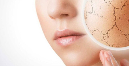 مقابله با خشکی پوست - ترنجان
