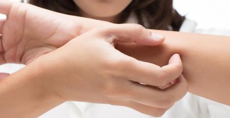 آشنایی با درمانهای مناسب برای تسکین خارش دستها و پاها - ترنجان