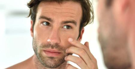 آنچه مردان باید درباره آکنه بدانند - ترنجان