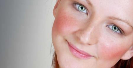 ۱۲روش مراقبت از پوست برای مبتلایان به روزاسه - بخش دوم - ترنجان