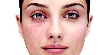 ۱۲روش مراقبت از پوست برای مبتلایان به روزاسه - بخش سوم - ترنجان