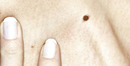 انواع سرطان پوست : پرسشهای متداول، نشانهها و نحوه پیشگیری از سرطانهای پوست - ترنجان