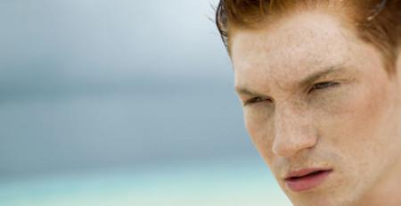 با انواع لکهای پوستی تیره و روشهای درمان آنها آشنا شوید - ترنجان