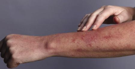 هفت ترفند برای تسکین خشکی پوست و خارش که باید بدانید - ترنجان