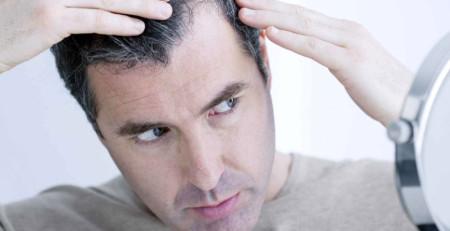 پوست سرم چه مشکلی دارد؟ - بخش اول - ترنجان