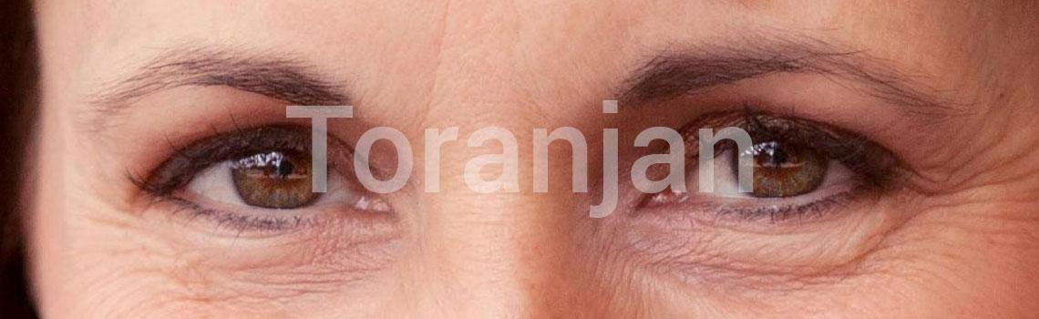 چروکهای چشم - ترنجان