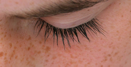 مراقبت از پوست - آشنایی با 9 روش برای کاهش لکههای پیری - ترنجان