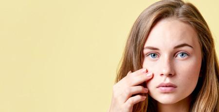 چگونه جوشهای نواحی مختلف را کنترل کنیم: وقتی پوست خوب بد میشود - ترنجان