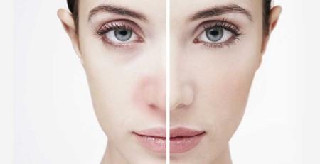 برخی مواد آلرژیزا و علل شایع آلرژی پوستی را بهتر بشناسید - ترنجان