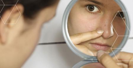 بروز آکنه بهدلیل اختلال هورمونی - زمانی که باید به دنبال درمان غیر پوستی باشید - ترنجان