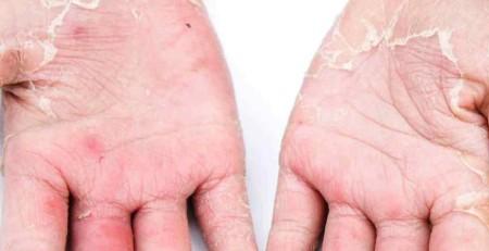 اگزما یا درماتیت - شناسایی عوامل بروز و راهکارهایی برای بهبود آن - بخش دوم - ترنجان