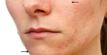 با روشهای مختلف برای از بین بردن منافذ پوست آشنا شوید - ترنجان