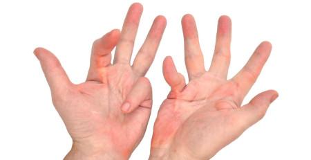 بیماری دوپویترن – بررسی موضوع - ترنجان