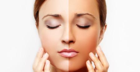 15 درمان خانگی برای روشن یا سفید کردن پوست - بخش چهارم - ترنجان